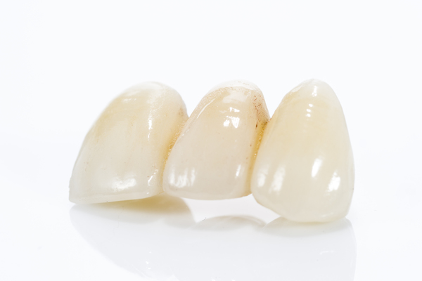 Dental Bridges: Fort Lee's Answer For Missing Teeth